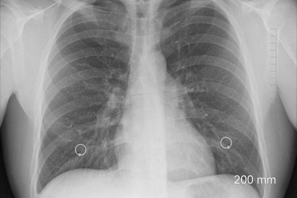 Rehabilitacja pulmunologiczna